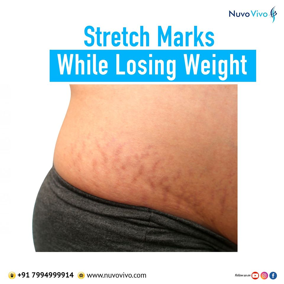 Stretch marks while losing weight